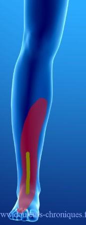 Chirurgie de la cheville