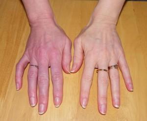Syndrome Douloureux Régional Complexe (algodystrophie) - Douleurs ...